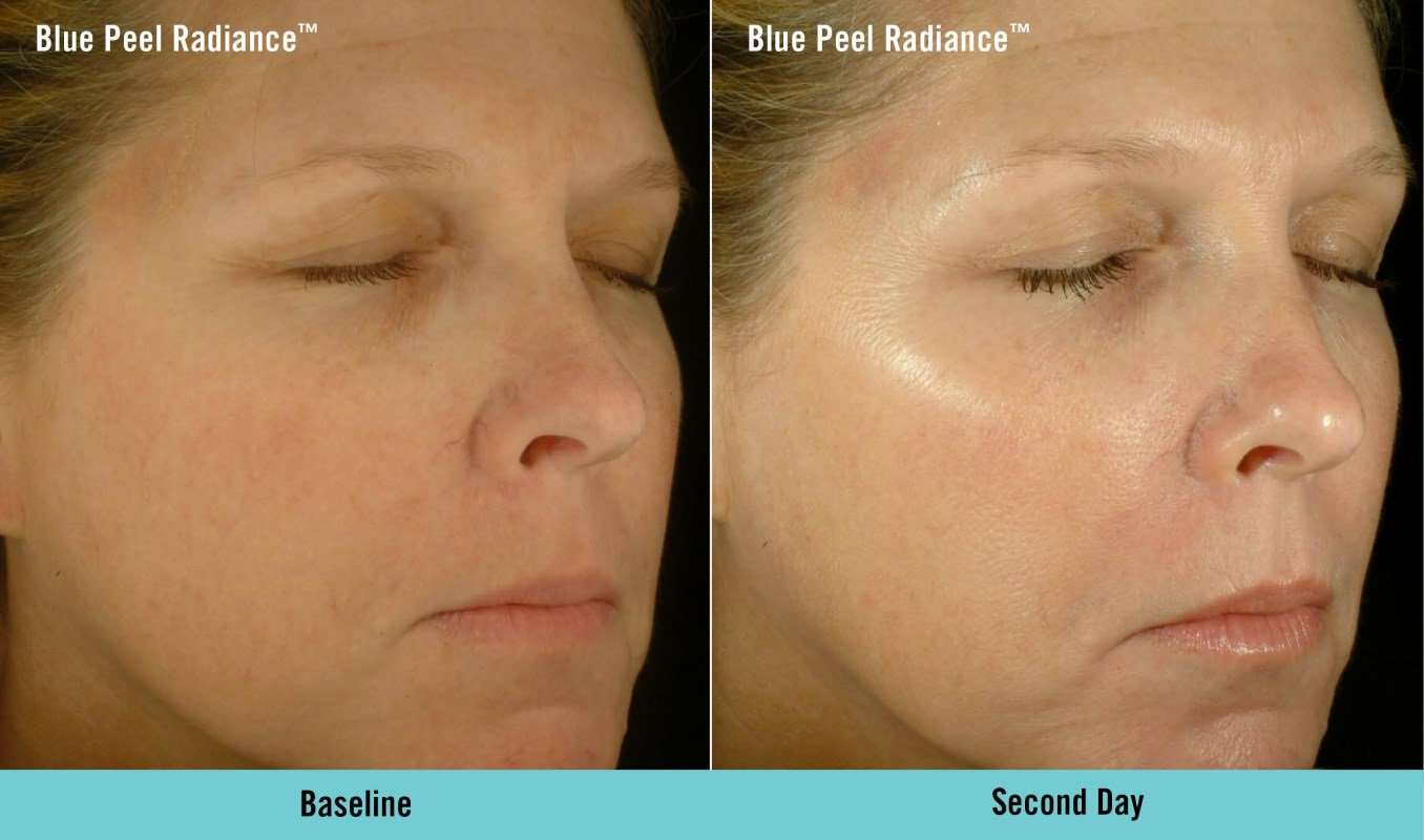Obaji Blue Radiance Peel in Belfast, Ireland
