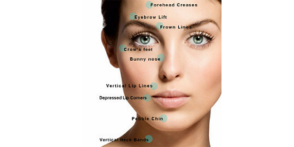 verve-facial-aesthetics-botox-treatment-areas